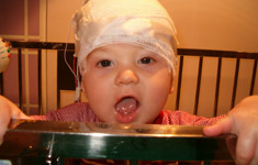 Child with head bandaged