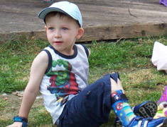 Child sitting in the grass with a leg brace