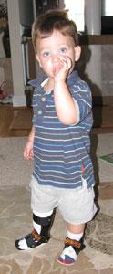 Boy with Two Leg Braces