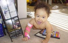Baby with arm brace