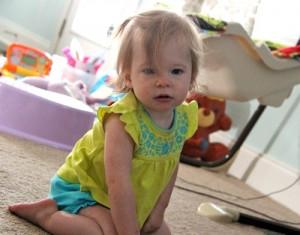 Baby Stroke Survivor