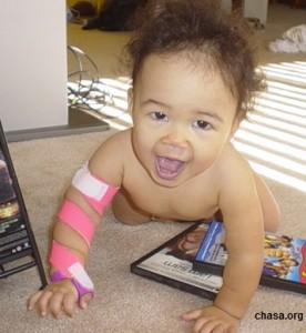 baby-stroke-survivor-chasa-org